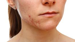 543 – La doctora Belén Encabo nos trae los mejores consejos para tratar el acné en la mujer adulta